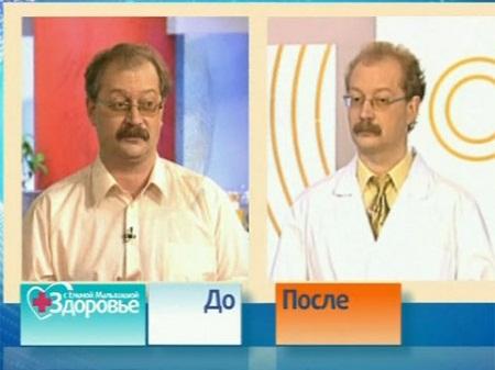 Андрей Продеус да и после похудения